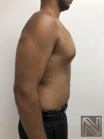 Gynecomastia: Patient 7 - After Image 5