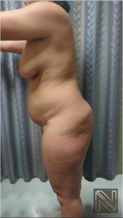 Liposuction: Patient 15 - Before Image 3