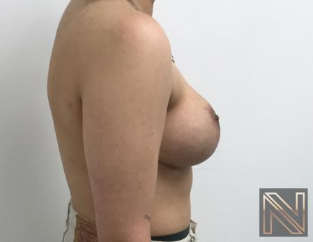 Breast Lift: Patient 17 - After Image 5