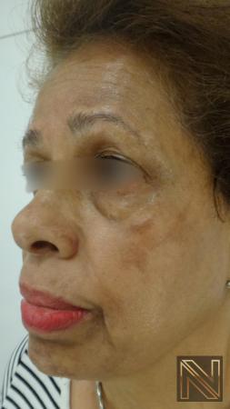 Laser Skin Resurfacing - Face: Patient 2 - Before 2