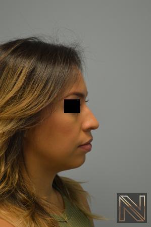Rhinoplasty: Patient 6 - Before Image 3