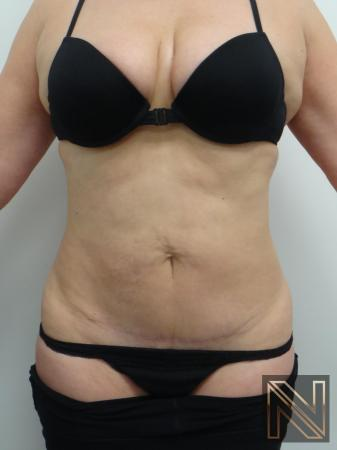 Mini Tummy Tuck: Patient 7 - After Image