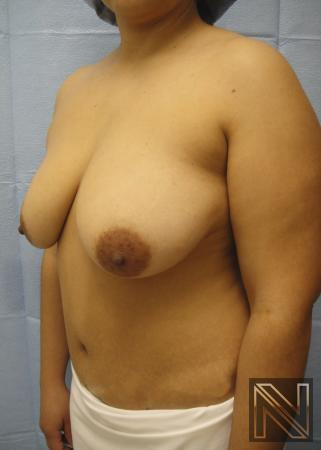 Breast Lift: Patient 6 - Before Image 3