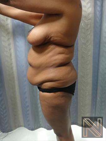 Abdominoplasty: Patient 8 - Before Image 2