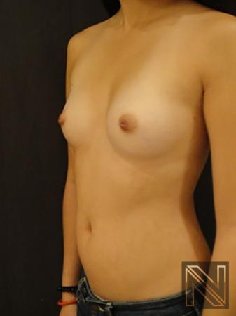 Inverted Nipple Surgery: Patient 2 - Before 2