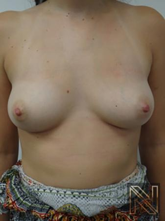 Inverted Nipple Surgery: Patient 3 - After