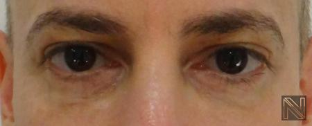 Fillers: Patient 9 - After Image