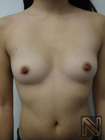 Inverted Nipple Surgery: Patient 2 - After 1