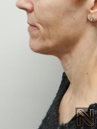 Ultherapy®: Patient 1 - Before Image