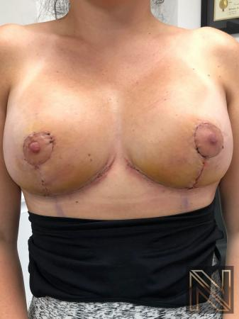 Breast Lift: Patient 8 - After Image 1