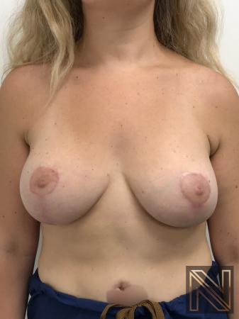 Breast Lift: Patient 10 - After Image 1