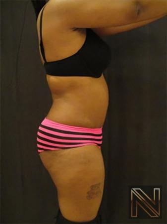 Abdominoplasty: Patient 7 - After Image 3