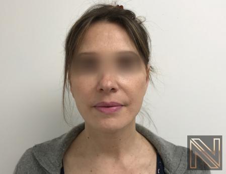 Facelift/Mini Facelift: Patient 5 - After Image 3