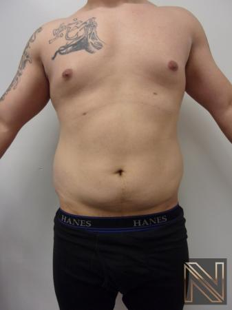 Liposuction: Patient 14 - Before 1