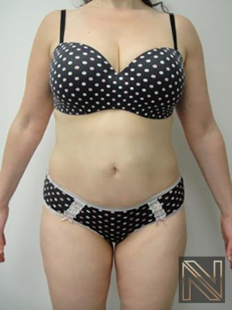 Liposuction: Patient 5 - After Image
