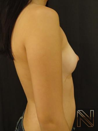 Inverted Nipple Surgery: Patient 2 - Before and After 5