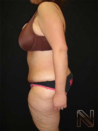 Abdominoplasty: Patient 19 - After Image 2