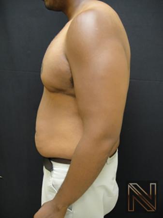 Gynecomastia: Patient 1 - After 4