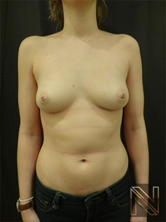Inverted Nipple Surgery: Patient 3 - Before