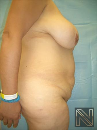 Abdominoplasty: Patient 19 - Before and After Image 3