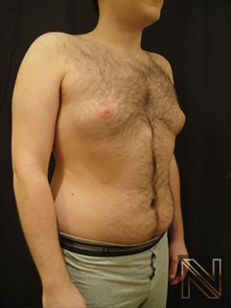 Gynecomastia: Patient 5 - Before Image 3