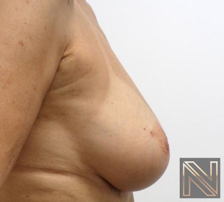 Fat Transfer - Body: Patient 1 - After 4