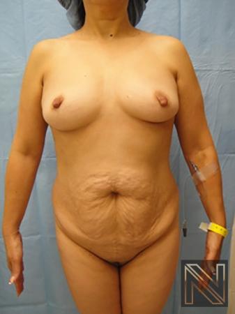Abdominoplasty: Patient 6 - Before Image