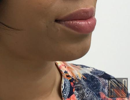 Chin Augmentation: Patient 3 - After Image