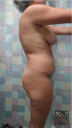 Butt Augmentation: Patient 3 - Before Image 3