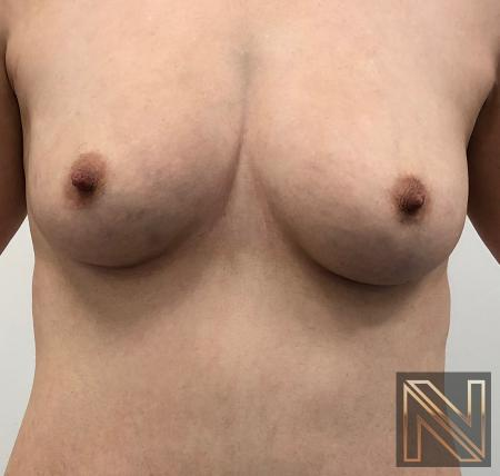 Fat Transfer - Body: Patient 2 - Before and After Image 5