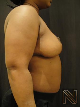 Breast Reduction: Patient 3 - After Image 5