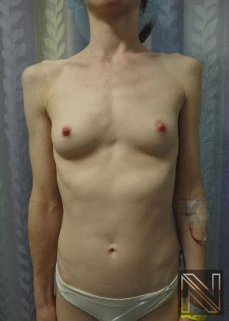 Breast Augmentation: Patient 17 - Before Image 1