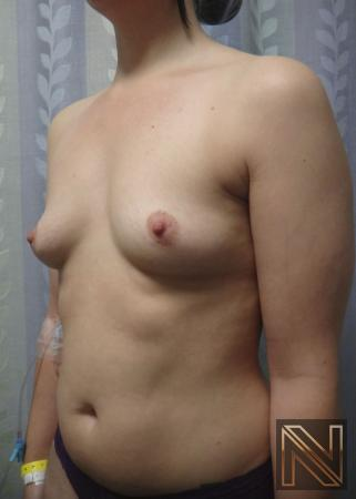 Breast Augmentation: Patient 15 - Before Image 3