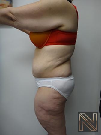 Abdominoplasty: Patient 12 - After Image 2