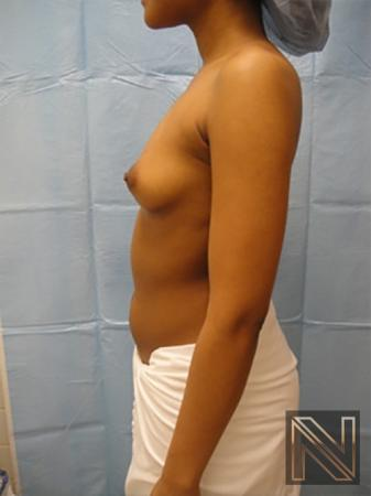 Breast Augmentation: Patient 14 - Before and After Image 4