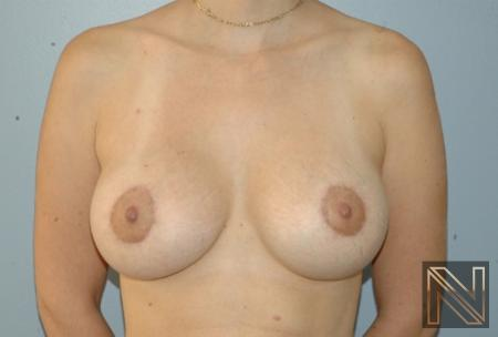 Breast Lift: Patient 15 - After 1