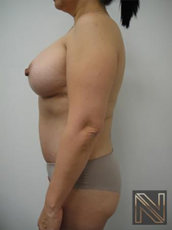Abdominoplasty: Patient 20 - After 2