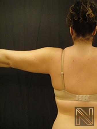 Liposuction: Patient 25 - After 1
