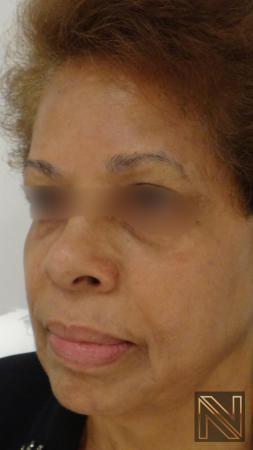 Laser Skin Resurfacing - Face: Patient 2 - After 2