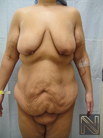 Abdominoplasty: Patient 17 - Before Image 1
