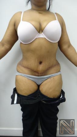 Abdominoplasty: Patient 23 - After 1
