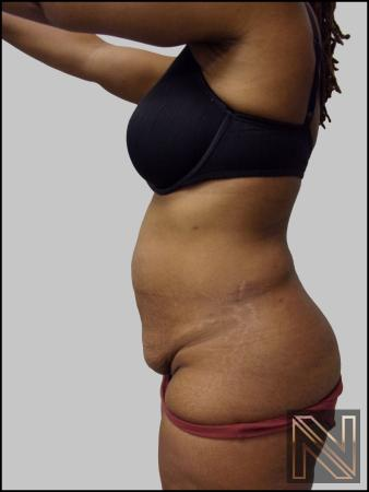 Mini Tummy Tuck: Patient 3 - Before and After Image 3