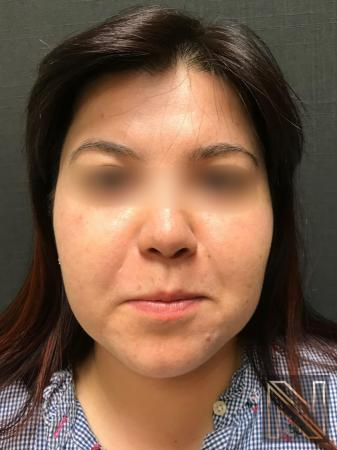 Fractional Resurfacing: Patient 5 - After Image