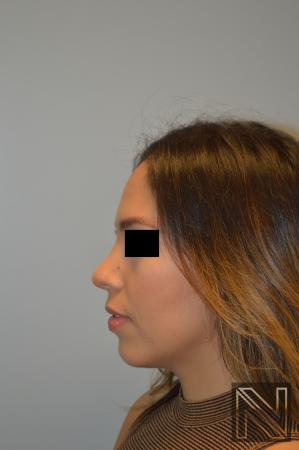 Rhinoplasty: Patient 6 - After Image 2