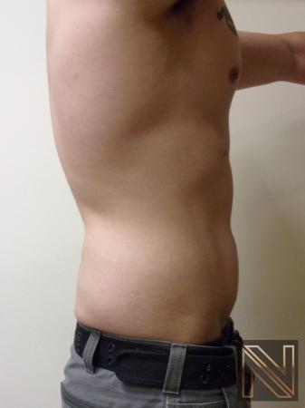 Liposuction: Patient 14 - After 3