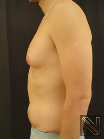 Gynecomastia: Patient 4 - Before Image 4