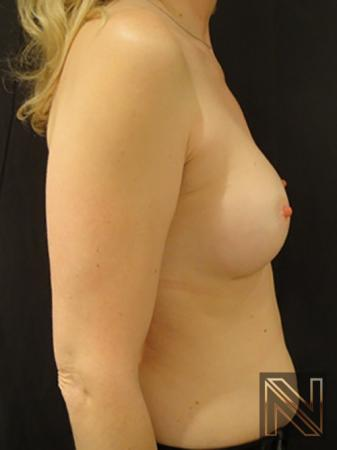Breast Augmentation: Patient 5 - After 5
