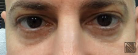 Fillers: Patient 9 - Before Image