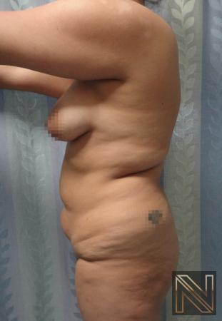 Butt Augmentation: Patient 5 - Before Image 2