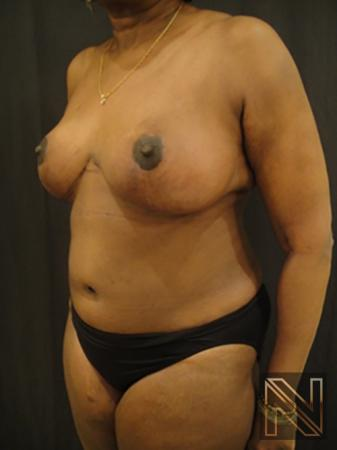 Breast Reduction: Patient 4 - After 2